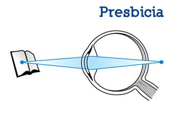87f7642ecb ... intermedias y largas en el fondo del ojo. Es un sistema que emplea dos  lentes diferentes, pero complementarios, que trabajan juntos para  proporcionar ...